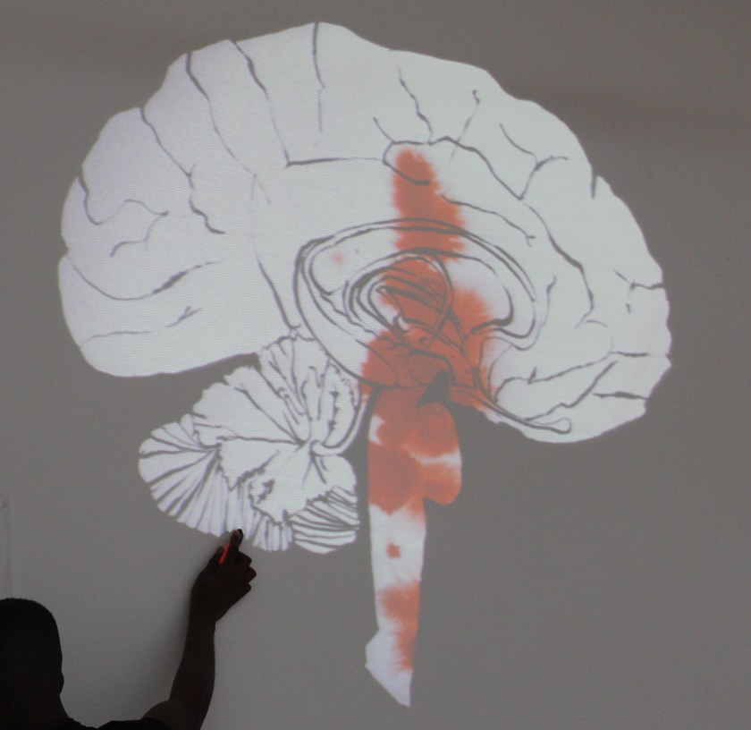 joannalayla amygdala 1