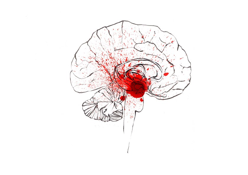 joannalayla brain amygdala 2