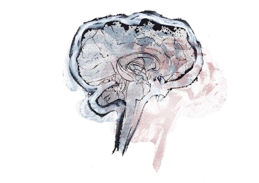 joannalayla brain dream 3