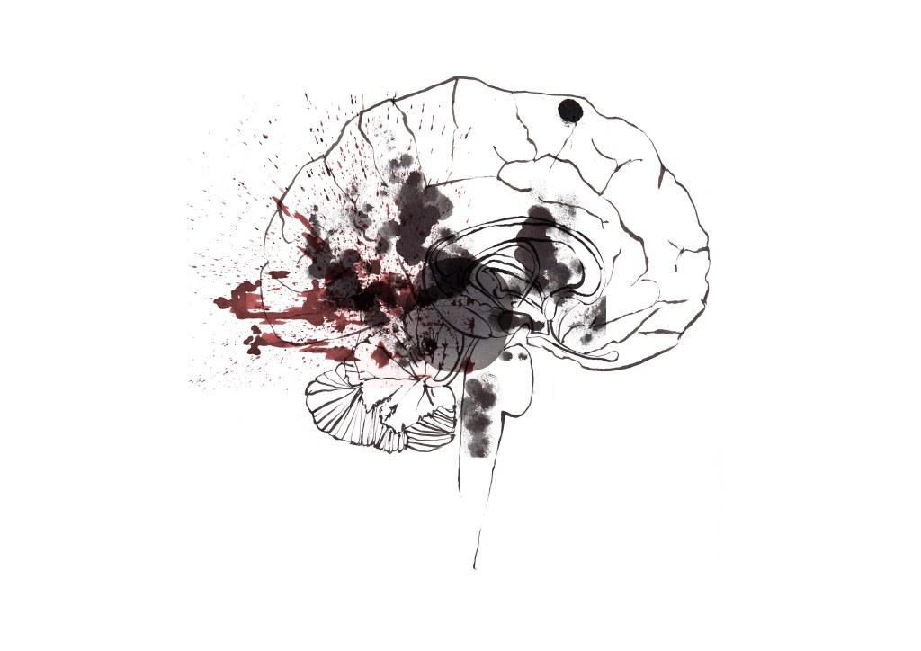 joannalayla brain PTSD memory mockup v.4