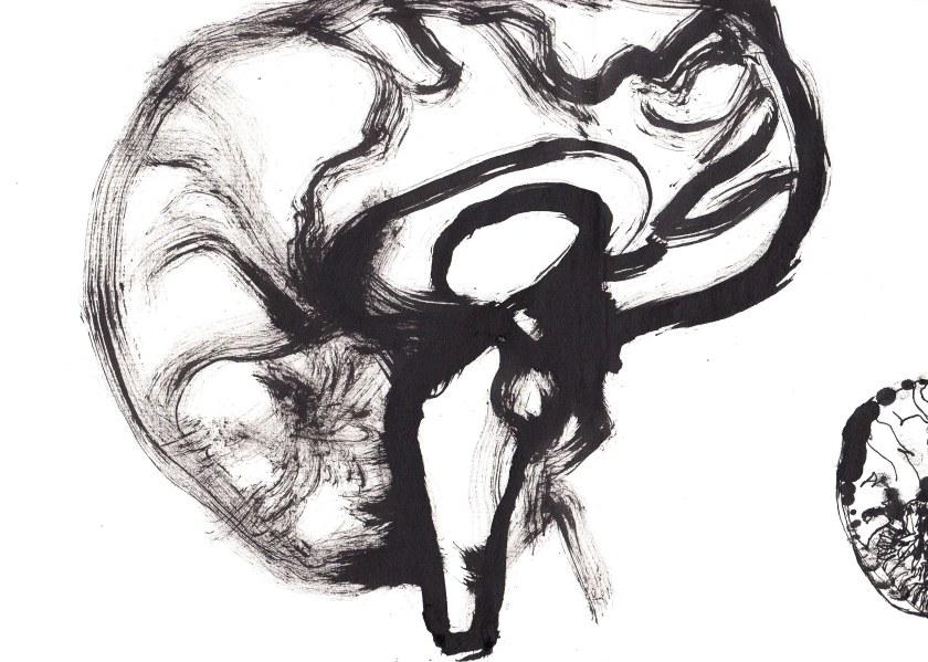 joannalyla brain 1